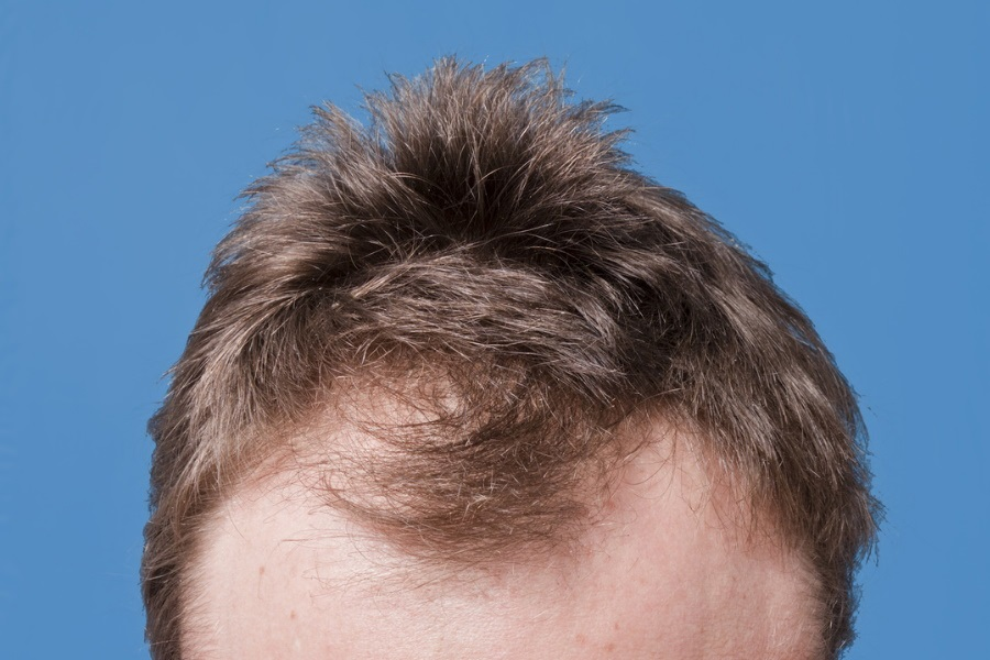 6 Most Common Causes of Hairloss