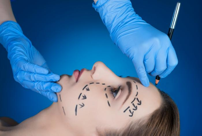 What You Need Know Before Going For A Facelift Surgery