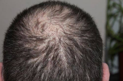 Who May Need Minoxidil and How It Functions?