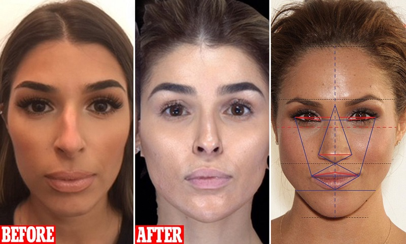 Achieve Stunning Looks With Cosmetic Surgery