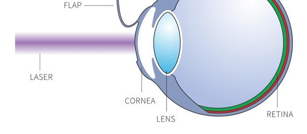 LASIK Eye Surgeon in London